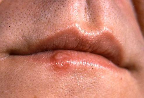 när smittar herpes munsår