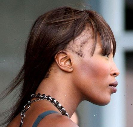 förhindra håravfall kvinnor