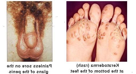 vad är reaktiv artrit