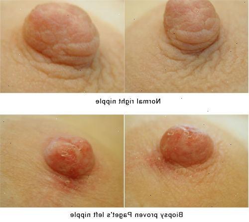 bröstcancer symptom utslag