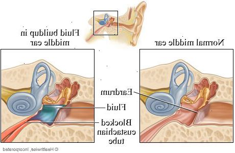 vätska i örat behandling
