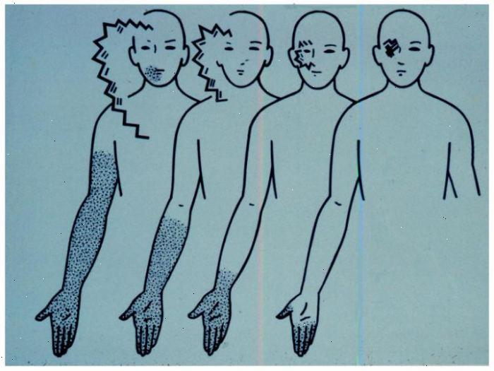 migrän med aura farligt