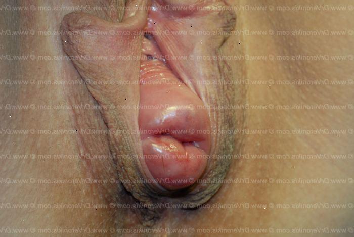 livmoder prolaps symptomer strømper sex
