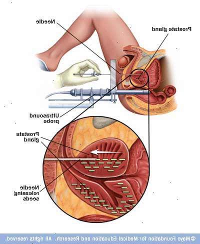 strålbehandling prostata