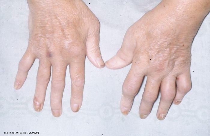 psoriasis i lederna