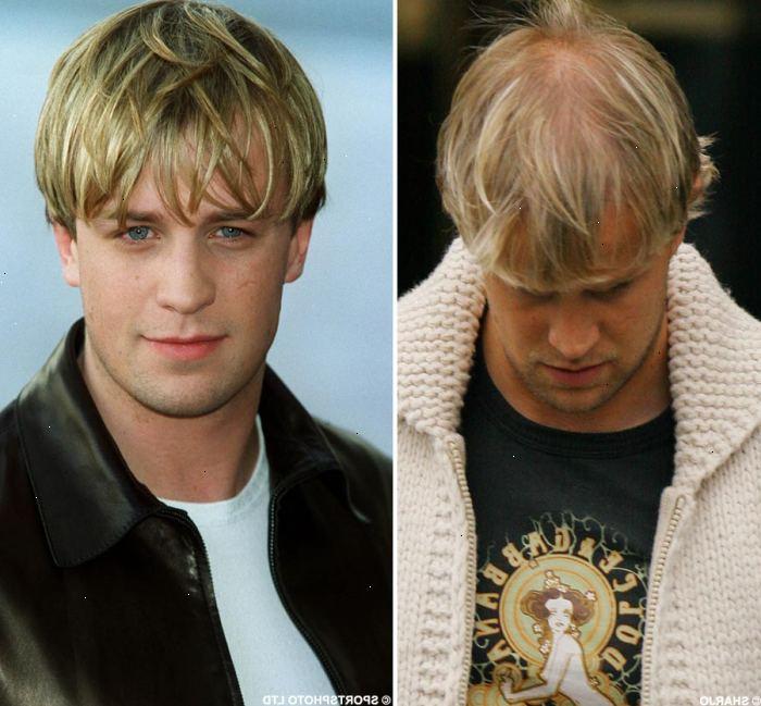 stoppa håravfall män