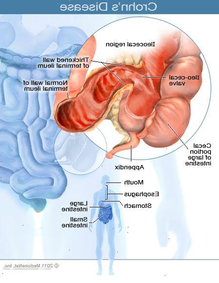 medicin mot crohns