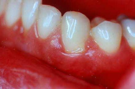 infektion i tandköttet behandling