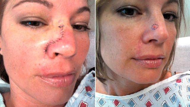 hudcancer på näsan