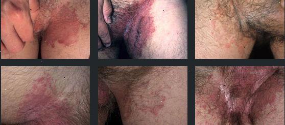ringorm behandling kräm