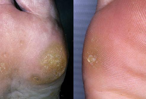 få bort hård hud fötter