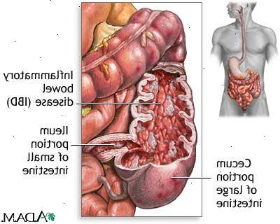 alternativ medicin ulcerös kolit