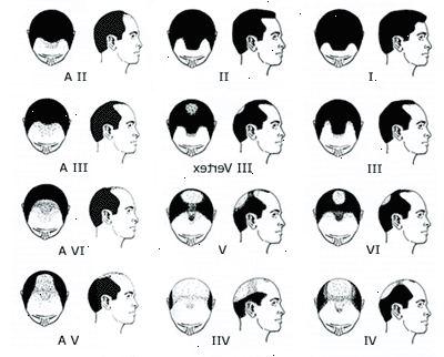 manligt håravfall behandling