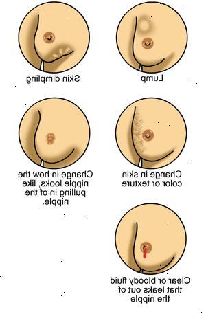 symtom på bröstcancer