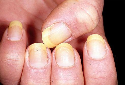 ingen halvmåne naglar