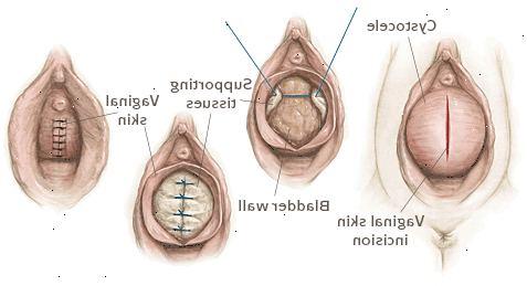 framfall efter förlossning bilder