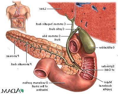 inflammation i gallblåsan