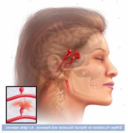 aneurysm i hjärnan operation