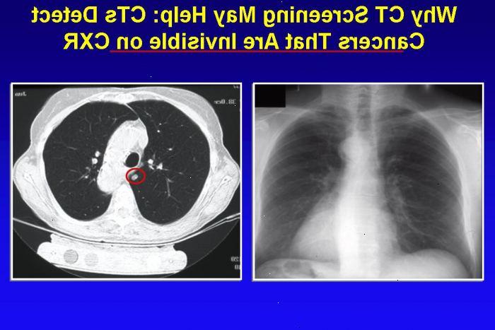 symtom för lungcancer