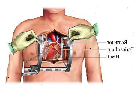 efter bypass operation hjärta