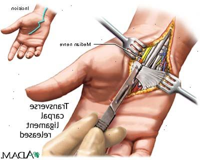 nervskada efter operation