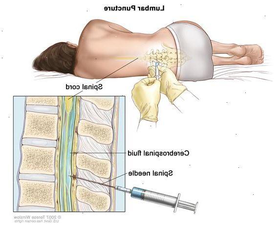 behandling sköldkörtelproblem