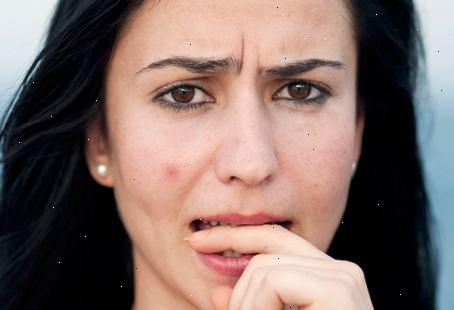 hudläkare acne