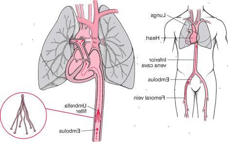 symtom på propp i lungan